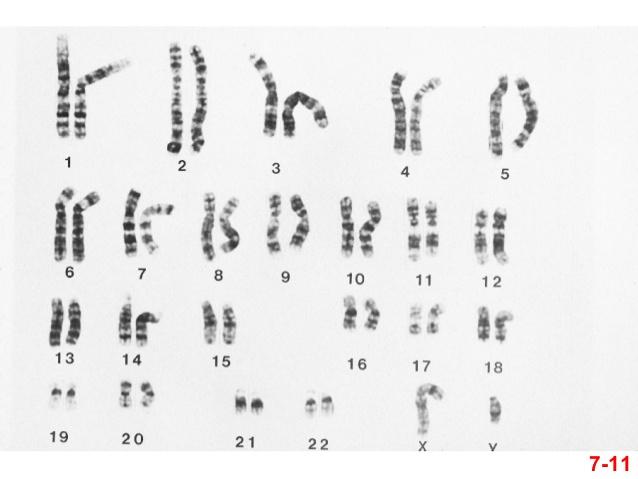 Chromosomų ir genų mutacijos